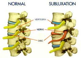 subluxation - Purity Chiropractic - Peregian Beach